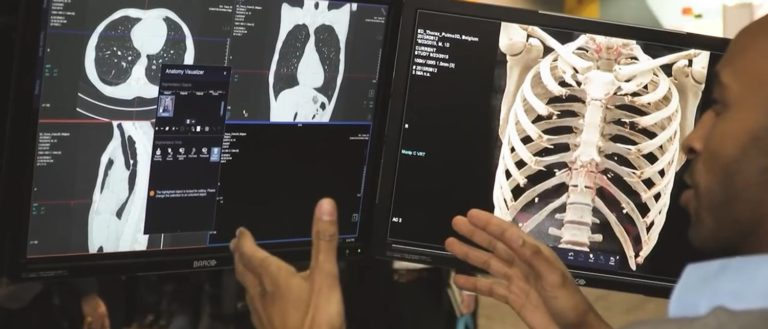 A person looking at an x-ray scan of a chest.